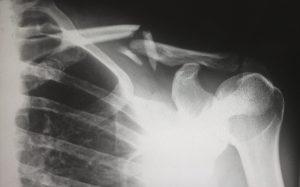 recovery from injury broken bones